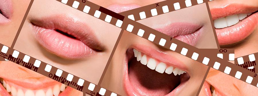 sonrisas-de-hollywood-1